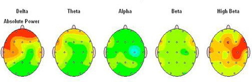 Autistic Brain Maps showing hertz frequencies