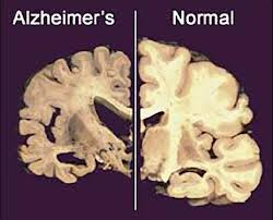 Alzeimers vs healthy brain
