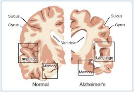 alzeimers brain and healthy brain in language centers