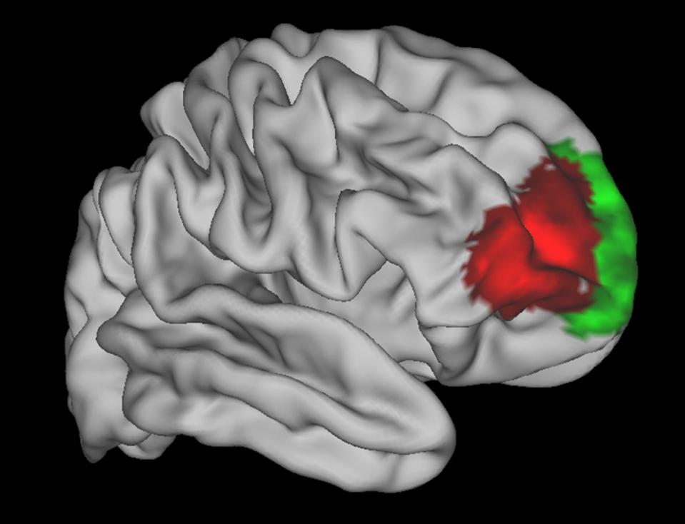 human-brain-region